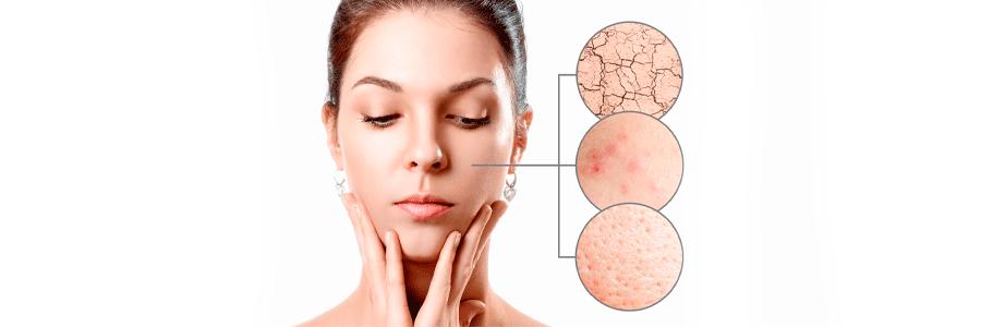 el acné se produce por la generación de humedad