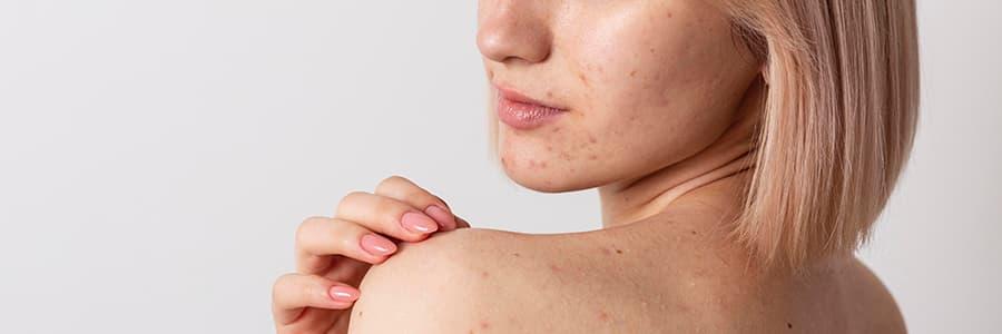 piel atópica